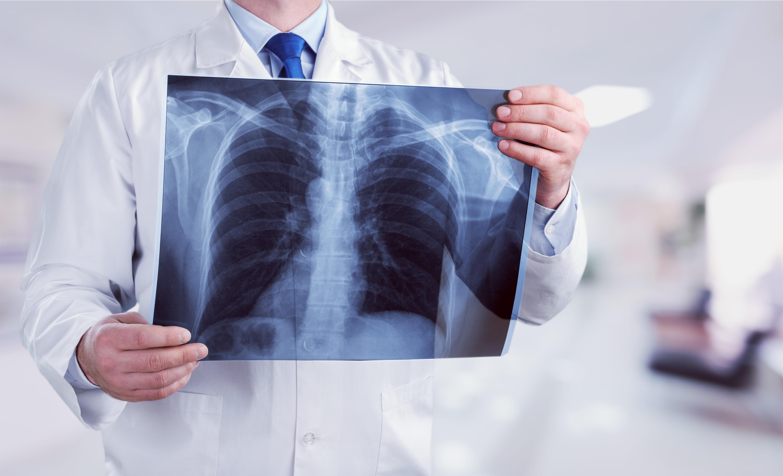 rossz lehelet a tüdőgyulladás után