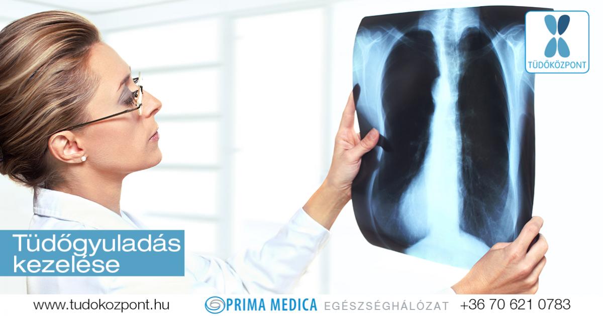 Antibiotikum tüdőgyulladás és prosztatitis Fájdalom a prosztatában a prosztatitisben