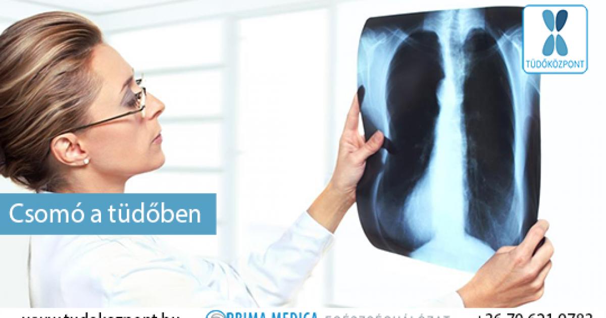Aszcariasis röntgen a tüdőben