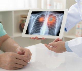 COVID-19 fertőzés okozta tüdőgyulladás