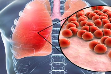 Életkoronként eltérő tüneteket okoz a tüdőgyulladás
