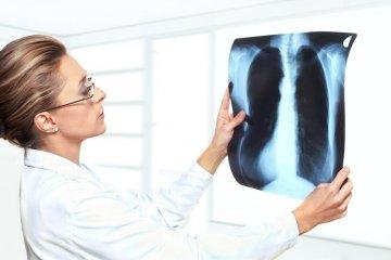 Csomó a tüdőben - nem csak daganatot jelezhet!