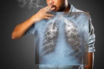 Tüdőtágulás: legtöbbször dohányzással kezdődik