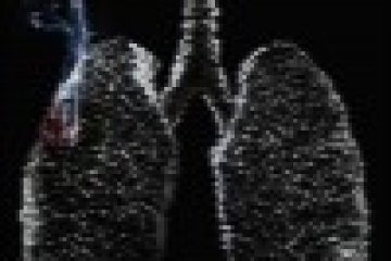 Tízből kilenc dohányos tüdőrákosként végzi