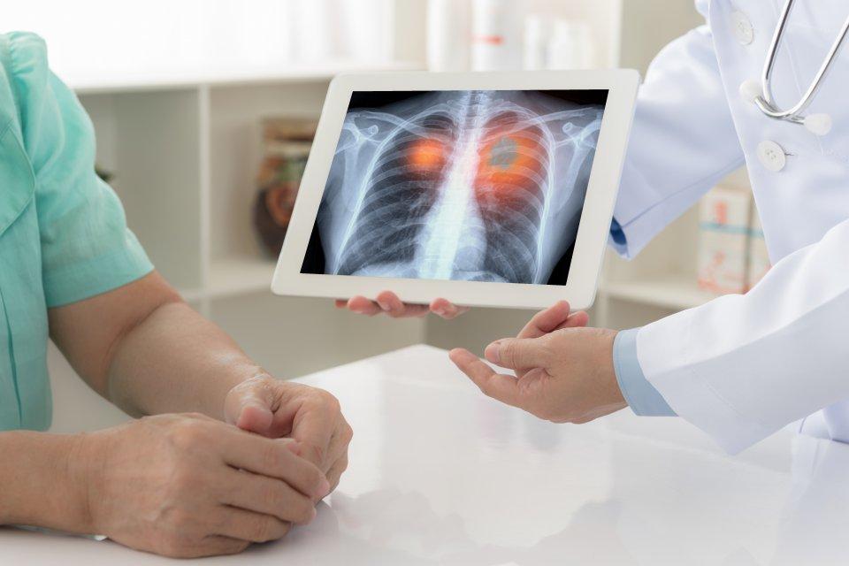 COVID fertőzés okozta tüdőgyulladás