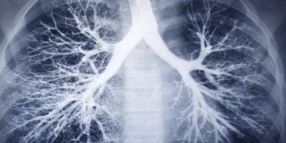 CT pulmonális angiográfia