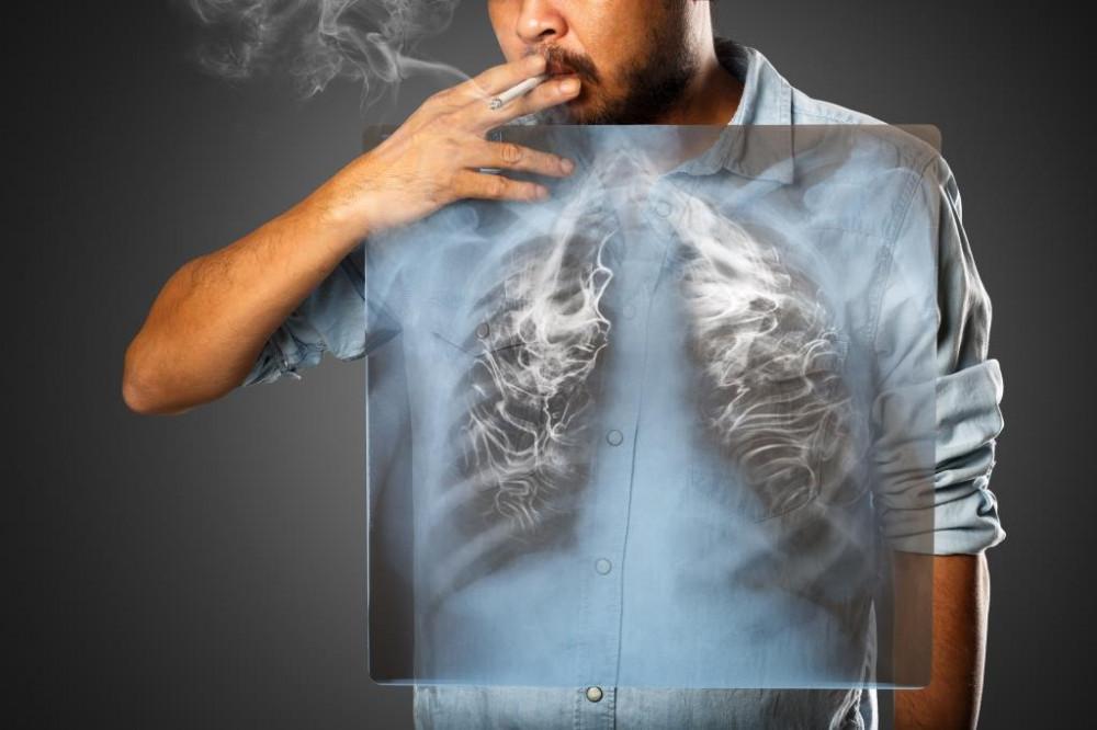 A dohányzás is a krónikus hörghurut rizikófaktora.